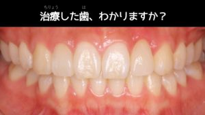 治療した歯わかりますか?2