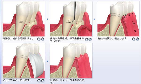 FOP(歯ぐきの手術)
